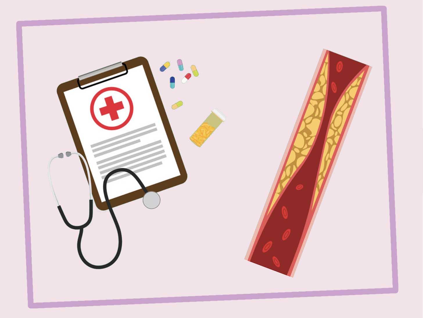 как снизить холестерин в крови в домашних условиях быстро и эффективно без лекарств -