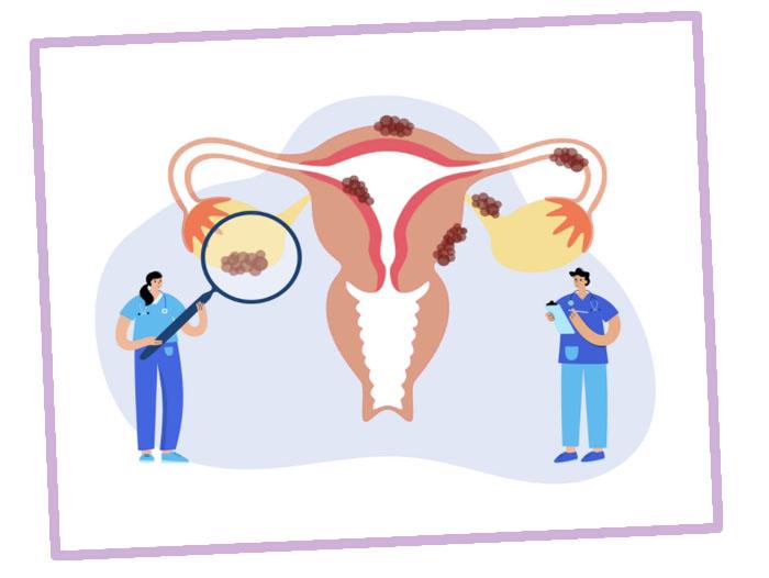 Симптомы, причины и лечение поликистоза